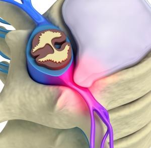 florida spine injury attorney